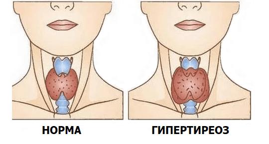 Что такое гипотиреоз?